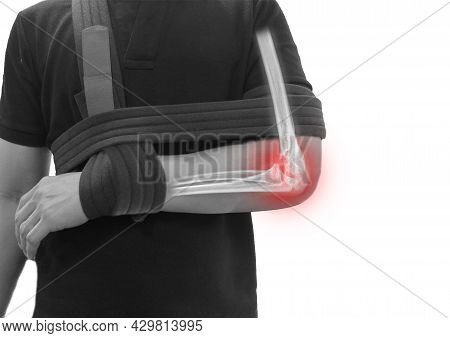 Close Up Forearm And Elbow Fracture Pain In A Man, Young Man Holding His Forearm In Pain Elbow Infla
