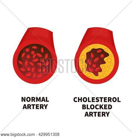 Normal And Narrowed Artery Cross Section Illustration