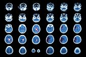 Hemorrhagic Stroke and Ischemic Stroke . CT scan of brain : intracerebral hemorrhage ( 3 left column) , cerebral infarction ( 3 right column )) ( Medical and Science background ) poster