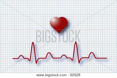 EKG ECG