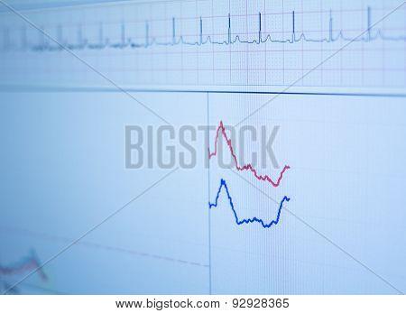 Sports Performance Fitness Endurance Evaluation Test Gas Analysis