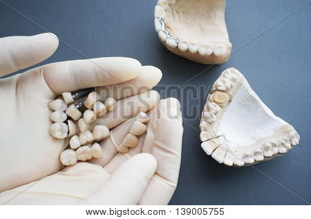 Selection dentures for plaster jaw close-up. Top view on dentist hands in protective gloves holding different dentures and dental crowns and two plaster jaws on gray background