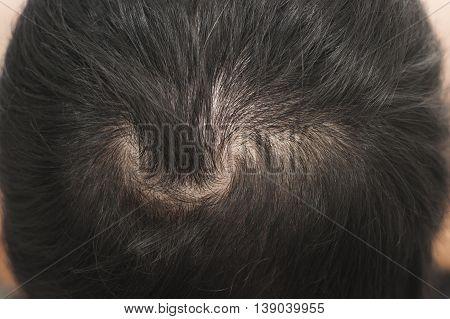 Close up hair loss / hair thin scalp
