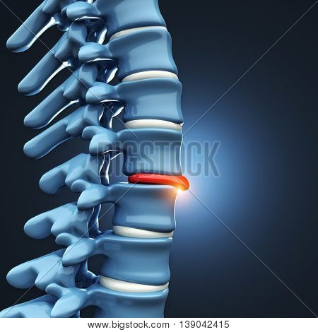 3d image of Herniated disk human spinal