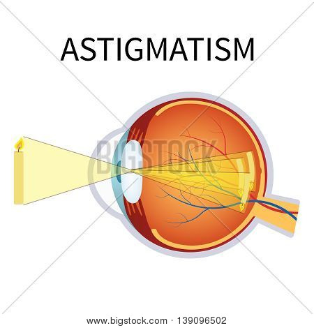 Illustration of astigmatism. Astigmatism is a blurred vision. Anatomy of the eye cross section.