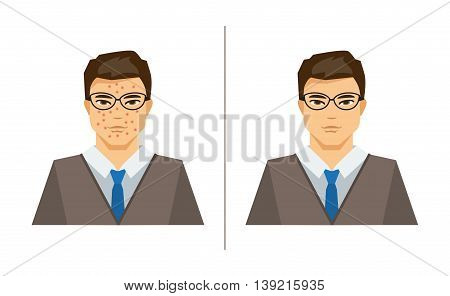 Illustration on medical theme a man with pimples and a man with healthy skin