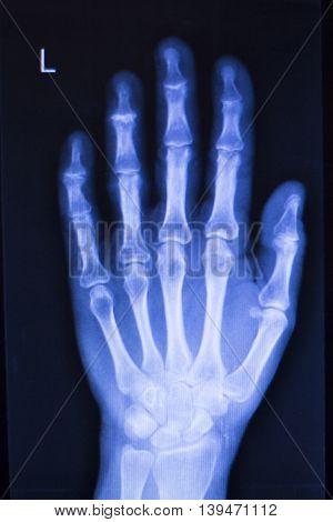 Hand Injury Fingers Xray Scan