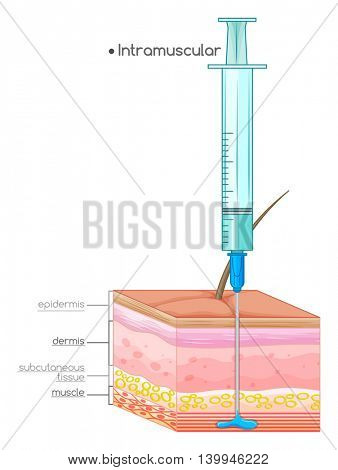 Diagram showing intramuscular injection illustration
