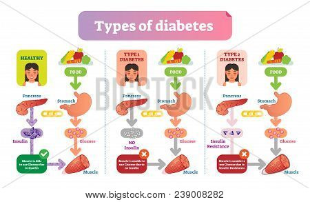 Types Of Diabetes Simple Medical Vector Illustration Scheme. Health Care Information Diagram With Ty