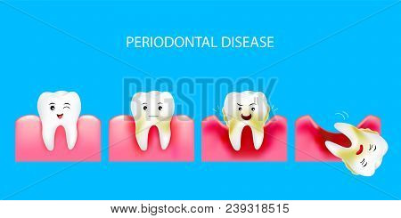 Step Of Periodontal Disease. Healthy Tooth And Gingivitis. Dental Care Concept. Illustration Isolate