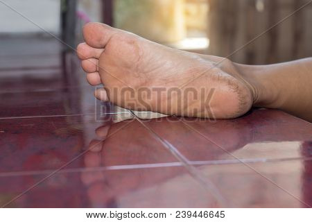 Closed-up Of A Dry And Cracked Heel, Crack Heel On Floor Background