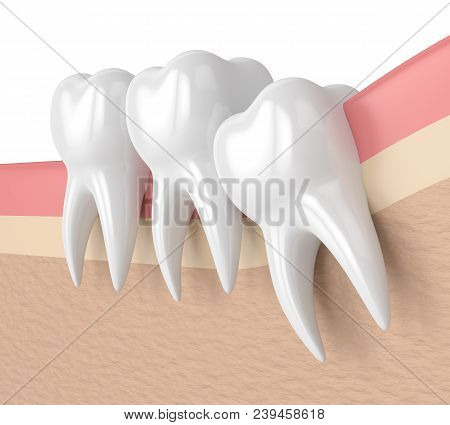 3D Render Of Teeth With Wisdom Crowding