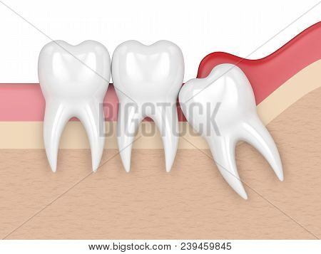 3d Render Of  Wisdom Mesial Impaction With Pericoronitis. Concept Of Different Types Of Wisdom Teeth