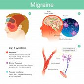 Migraine. Headache, pain, tend cooccur on one side of the head.Pressured blood vessels reduce blood flow for brain. Illustration.. poster
