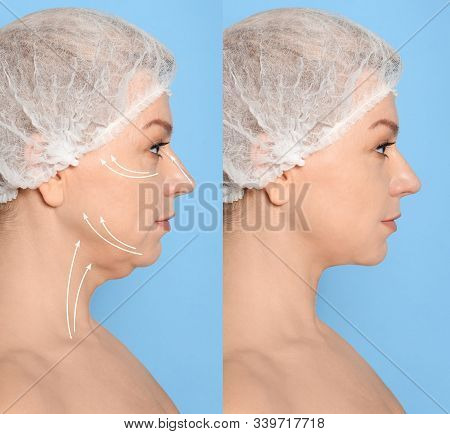Mature Woman Before And After Plastic Surgery Operation On Blue Background. Double Chin Problem
