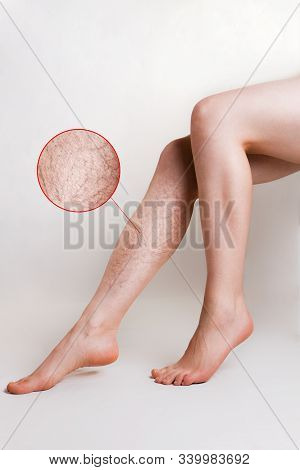 Varicose Veins And Medicine. Slender Female Legs With Varicose Veins On One Of Them. A Magnified Ima
