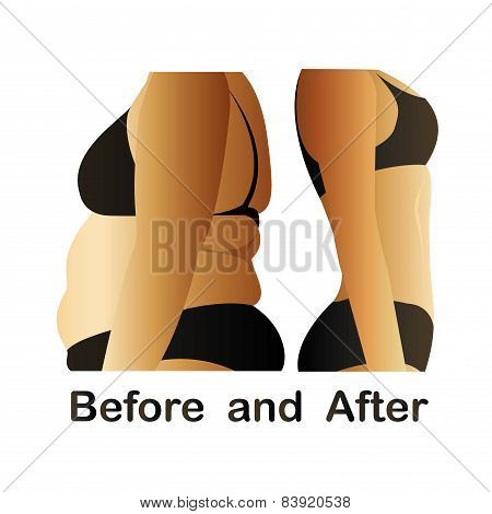 Woman's Body Before And After Fitness,yoga.