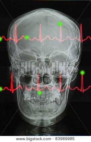 Skull X-rays Image And Lifeline Of Electrocardiogram