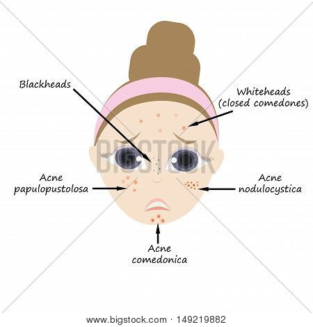 Types of acne pimples human skin poster. Facial treatments infographic. Modern flat design. Sebum in clogged pore, growth bacteria, redness, inflammation. Womens Beauty care.