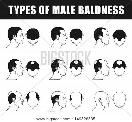 male baldness, type baldness, head baldness, norwood scale, human baldness, alopecia progress, age baldness, type of male baldness