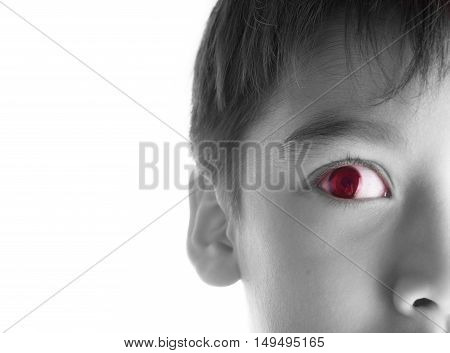 close up boy's scare look at side black and white red spot on eye
