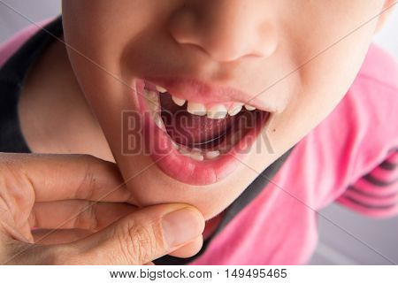 Little boy with the first new permanent teeth