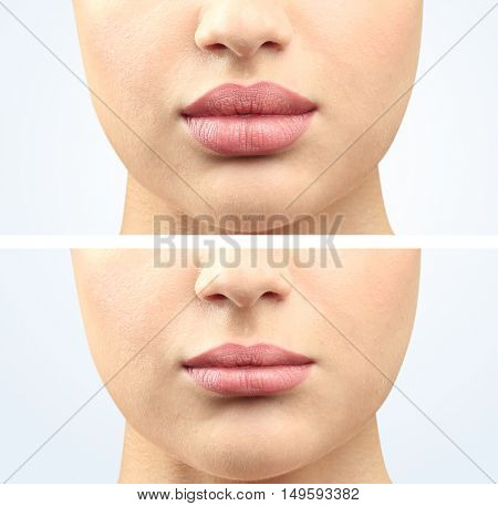Woman lipc before and after cosmetic procedure. Plastic surgery concept.