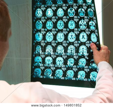 The doctor examines the scan result, close up