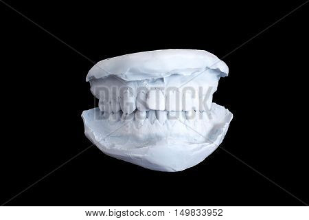 Dental Examining, Plaster Dents Model Isolated On Black Background With Clipping Path