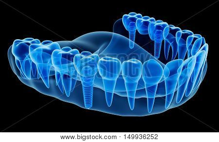 X-ray view of denture with implant,3D render