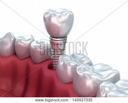 Dental implant Medically accurate 3D illustration,3D render