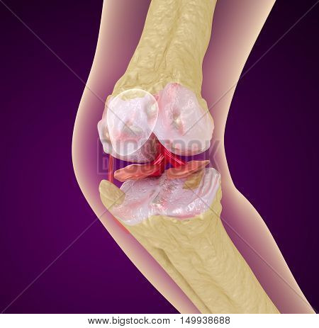 Osteoporosis of the knee joint Medically accurate 3D illustration