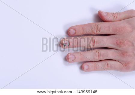 Closeup shot of hand with subungual hematoma.