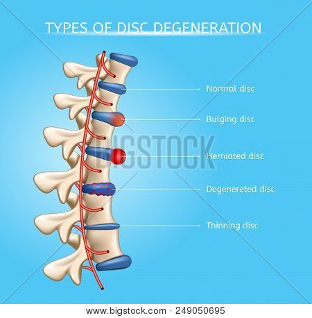 Types Of Spinal Disc Degeneration Vector Medical Scheme With Normal, Bulging, Herniated, Degenerated