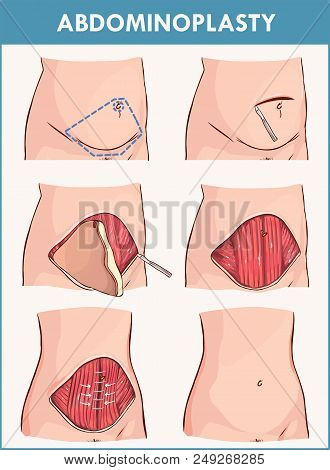 Vector Illustration Of A Abdominoplasty And Lipectomy Procedures