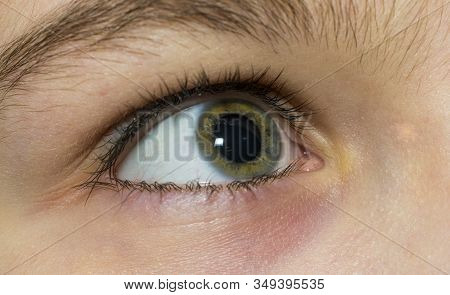 A Macro View Showing The Details Of The Human Eye. A Young Caucasian Woman With Blue Iris Looks Dire