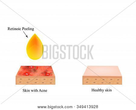 Retinoic Peeling For Acne. Inflamed Skin Acne. Acne Purulent. The Anatomical Structure Of The Skin.
