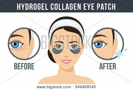 Before And After Hydrogel Eye Patches. Cosmetic Collagen Eye Patches. Black Eye Patches For Beauty A