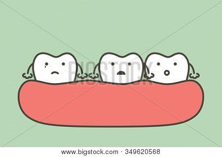 Spacing Teeth (diastema), Dental Problem - Tooth Cartoon Vector Flat Style Cute Character For Design