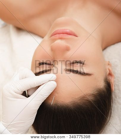 Acupuncture Treatment For Woman Headache And Migraine. Certified Acupuncturist Treats A Womans Migra