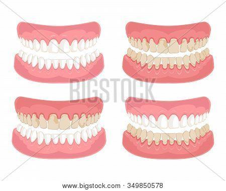 Gum Disease And Teeth, Periodontal Disease. Gum Disease, Bleeding Gums, Unhealthy Teeth, Yellow Teet
