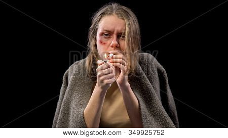 Depressed Woman With Wounded Cheek Lighting Cigarette, Hard Time, Hopelessness