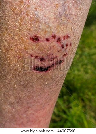 Dog Bite On Leg - Wound