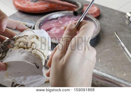 Dental Technician Doing Partial Dentures Of Acrylic Resins.