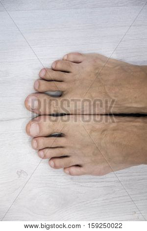 Male foot and toes with damaged nail isolated on white background male pedicure