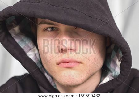 horizontal head shot of a young caucasian teenager with acne looking angry and sad wearing a hoodie that covers one eye.