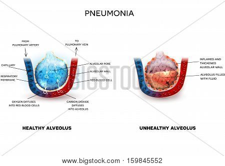 Pneumonia And Healthy Alveoli