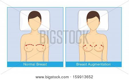 Normal breast shape and breast implant shapes of woman when lying with turning face up. Illustration about cosmetic surgery.