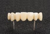 Crown seven elements on zirconium oxide, detail of the layering ceramic dental implant. poster