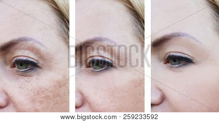 Woman Wrinkles On Face, Pigmentation Before And After Procedures